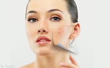 Мифы о чистке лица